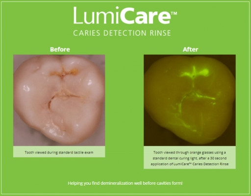 GreenMark Secures FDA Clearance for LumiCare™ Caries Detection Rinse