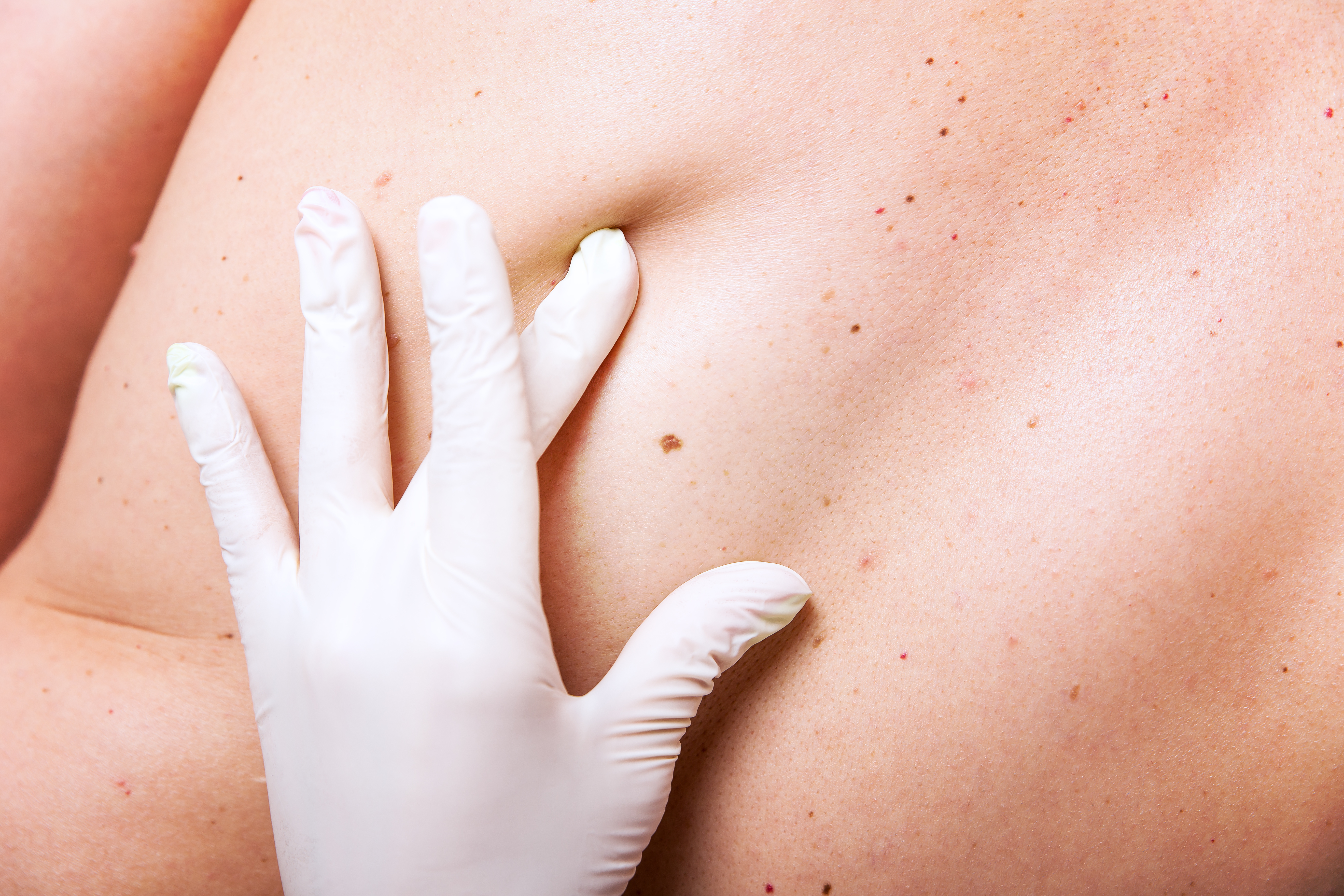 Moles, Warts, Scars, and Cherry Angiomas, Oh My! Homeopathy Helps