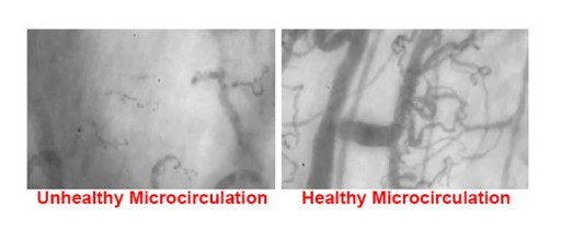 Microvascular Dysfunction in COVID-19 Patients: MYSTIC Study